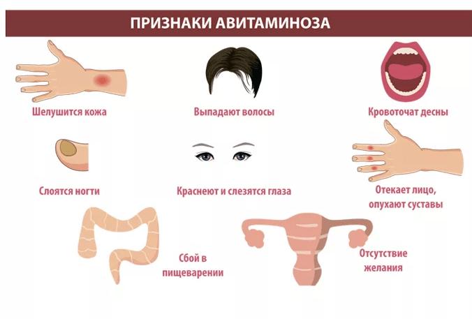 признаки авитаминоз